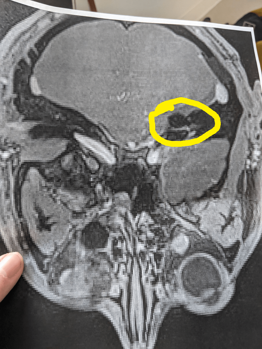 Brain MRI after surgery for acoustic neuroma